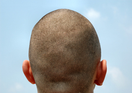 Shorn of Individuality